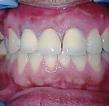discoloured-incisors-restored-with-ceramic-crowns