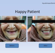happy-patient-denture-insertion
